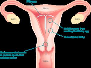 mirena-uterus-chart
